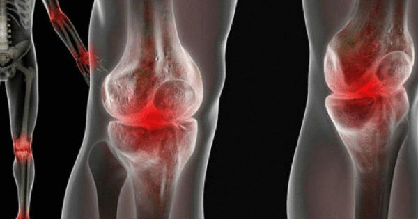 content_the-fight-against-pain-in-the-joints__econet_ru