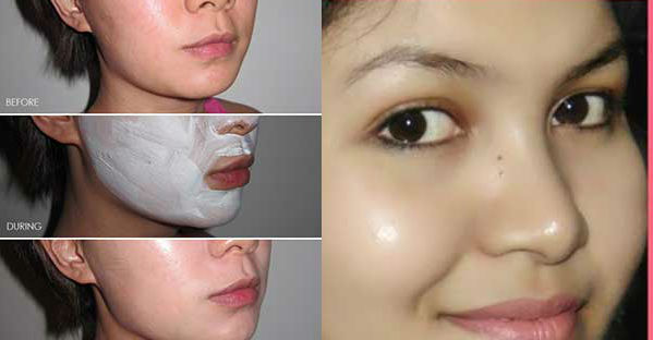 use-nights-get-spot-free-glowing-skin