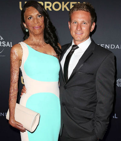 10Turia-Pitt-Engaged-Michael-Hoskin