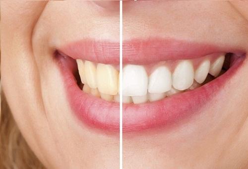 sojranit-beliznu-zubov-500x3411