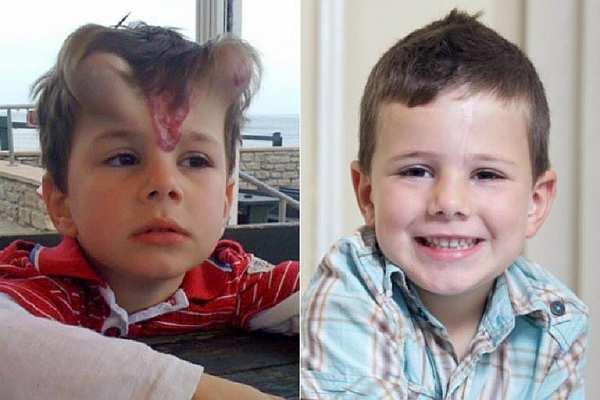 Маленькому мальчику сделали операцию и вот как он теперь выглядит. Я удивилась, узнав причину.