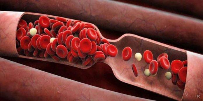 ДАЖЕ ОБЫЧНАЯ… разжижает кровь и чистит сосуды! Что делать, если густая кровь?